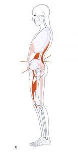 骨盤の前傾と筋肉の緊張の関連